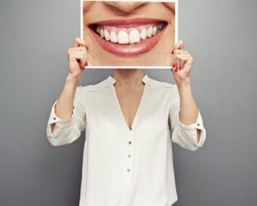 Claves para contratar un seguro dental para autónomos